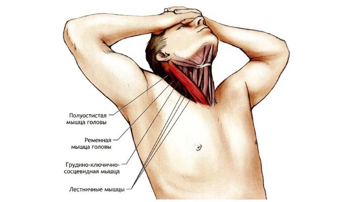 Если потянул мышцу на шее что делать